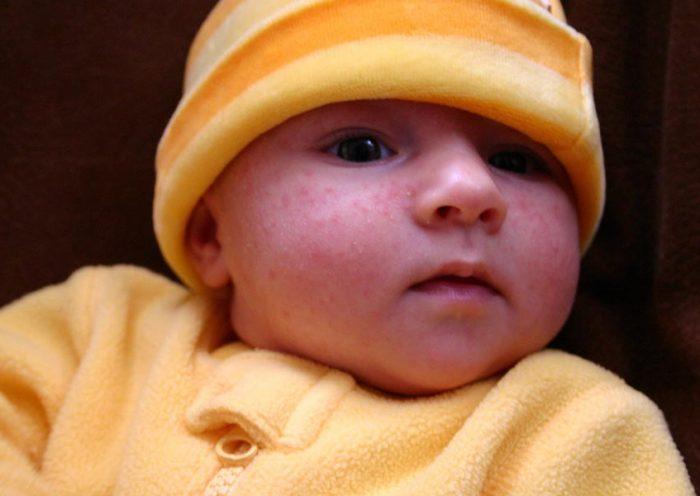 acné chez vos bébés