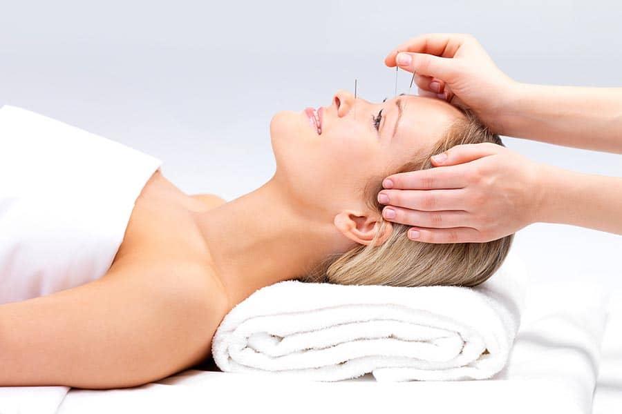 médecine chinoise traditionnelle, L'acupuncture