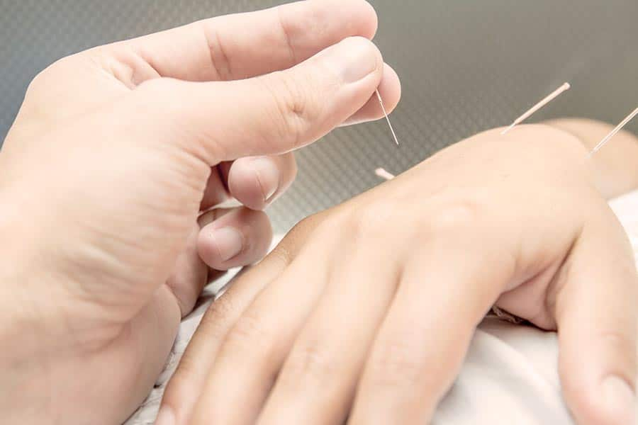 L'acupuncture, médecine chinoise